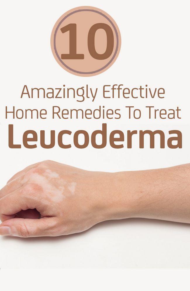 10 Remèdes maison Etonnamment efficaces pour traiter leucoderme