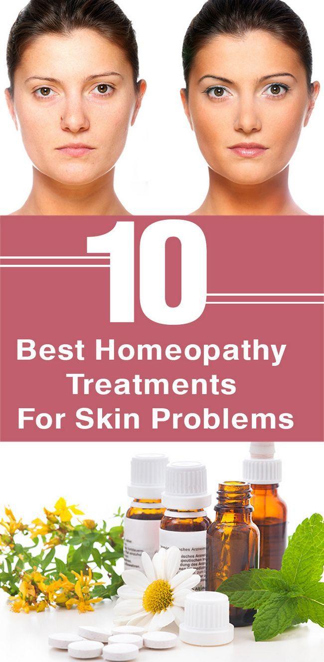 10 Les meilleurs traitements de l`homéopathie pour les problèmes de peau