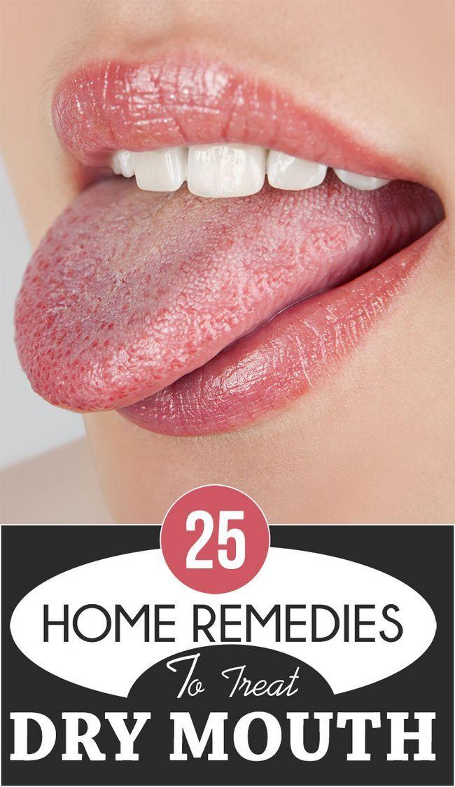 25 Remèdes maison efficace pour traiter la bouche sèche