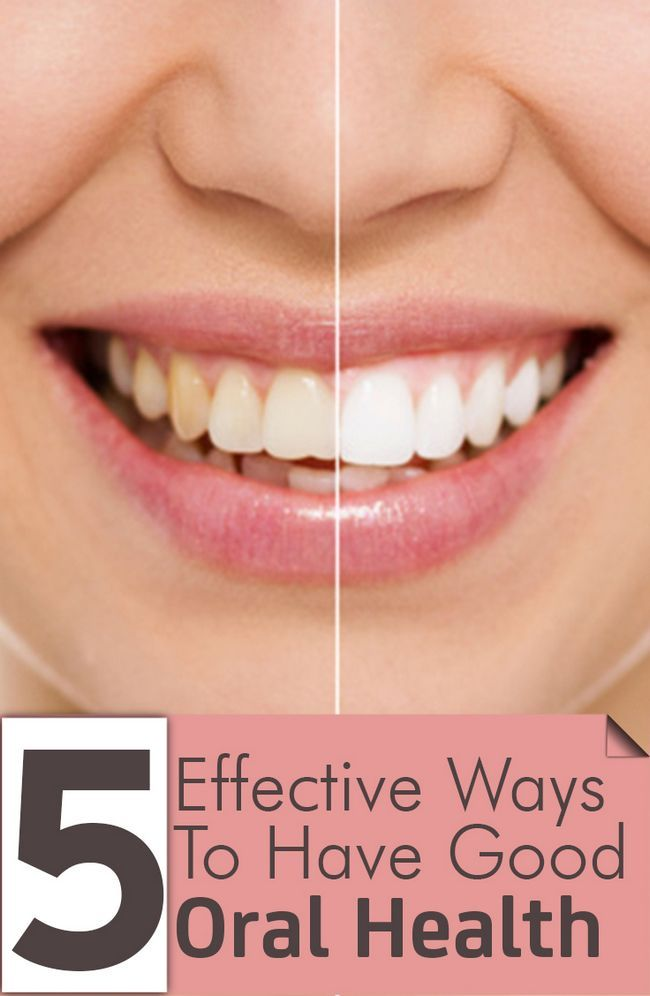 5 Façons efficaces d`avoir une bonne santé bucco-dentaire