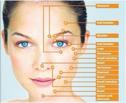 L`acné carte de visage - trouver la cause et la solution à l`acné par le placement de Pimple