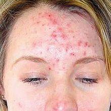 Images de l`acné - quoi ressemble l`acné comme?
