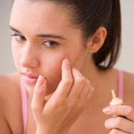 Traitement de l`acné adulte - comment se débarrasser de l`acné sur les adultes