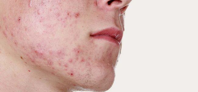 L`acné adulte - types, les causes, et les soins treamtment