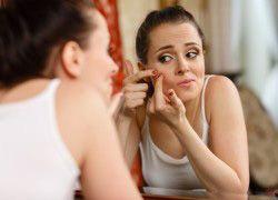 L`acné adulte - ce qui est et quelles sont les causes