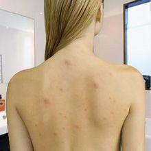 Retour acné - comment se débarrasser de bacne