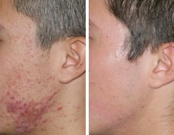 Le meilleur produit de l`acné pour les peaux grasses