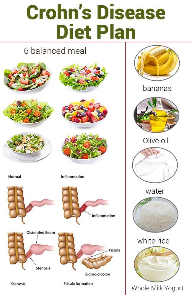 Le régime alimentaire de la maladie de Crohn - ce qui est et comment fonctionne-t-il?