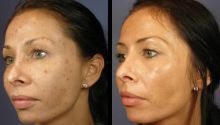 Solutions de dermatologie pour l`acné adulte: quel est le dermatologue le plus efficace des médicaments pour l`acné?