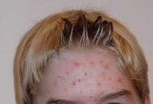 Acné adulte Forehead: comment le traiter?