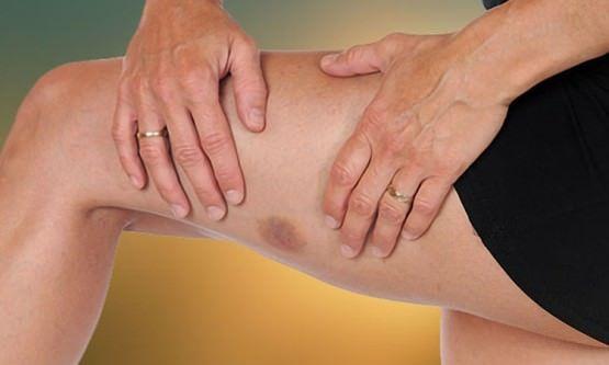 Remèdes maison pour les bleus (les jambes, les bras, la main, le cou et le visage)