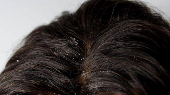 Remèdes maison pour le traitement des pellicules et du shampoing