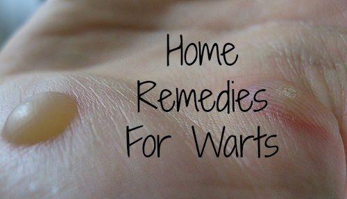 Remèdes maison pour se débarrasser des verrues naturellement rapide (de façon permanente)