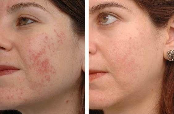 Traitement des cicatrices d`acné maison