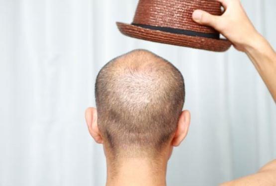 Comment prévenir la perte de cheveux chez les femmes et les hommes