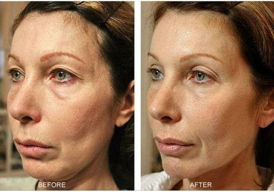 Comment serrer la peau lâche?