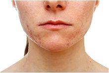 Comment traiter l`acné adulte soudaine