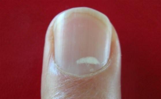 Traiter les taches blanches sur les ongles avec des remèdes maison