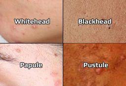 Types d`acné - quel type d`acné avez-vous?